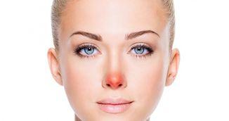 Ai nasul mereu rosu? Uite ce spune acest lucru despre starea ta de sanatate