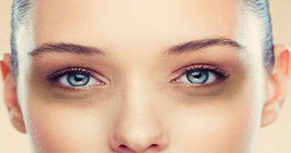 Bolile pe care le ascund cercurile negre de sub ochi