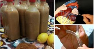 Ai probleme cu colesterolul? Sucul asta natural face minuni pentru tine