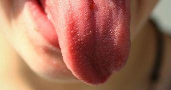 Lucruri pe care limba incearca sa ti le spuna despre sanatatea ta!