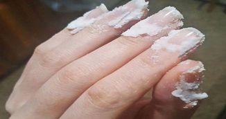 De ce sa iti masezi unghiile cu bicarbonat de sodiu. Sigur nu stiai trucul asta