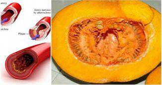 Cum sa-ti scazi radical colesterolul, glucoza din sange, lipidele si trigliceridele intr-o singura luna!
