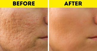 A scapat de cicatricele lasate de acnee cu doua ingrediente iefine. Metoda naturala si garantata