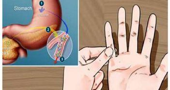Cum afli daca ai diabet in mai putin de un minut. Fa-ti testul celor cinci degete
