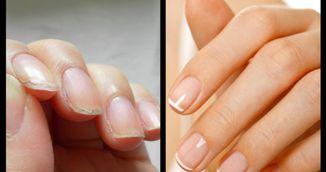 Ti se rup unghiile usor? Afla cum sa le ingrijesti cu ulei de masline