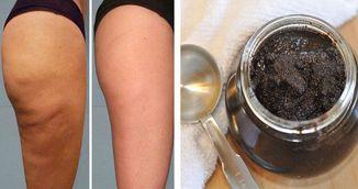 Pasta din doua ingrediente care sterge celulita pe picioare si posterior