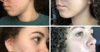 Pustoaica asta a scapat de acnee in doar patru luni, folosind produse pe care le ai si tu in casa