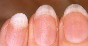 Simptome care iti pot salva viata. Ce inseamna daca observi schimbari ale unghiilor