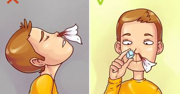 Iti curge sange din nas? Nu iti mai lasa capul pe spate si nu te intinde in pat! Motivul te va soca!