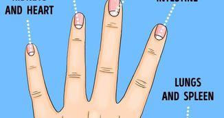 Ti s-a modificat lunula pe unul dintre degete? Uite ce probleme de sanatate ei!