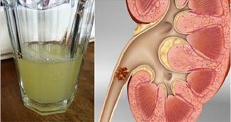 Cum elimini pietrele la rinichi rapid. Consuma jumatate de pahar din aceasta bautura