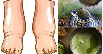 Cel mai bun remediu pentru picioarele umflate. Prepara-ti un ceai simplu