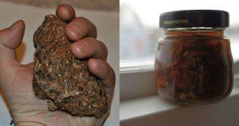 Acesta este singurul produs care ucide virusii, infectiile fungice si toate bacteriile!