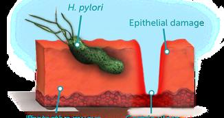 Reteta care elimina bacteria Helicobacter Pylori fara antibiotice. Face adevarate minuni