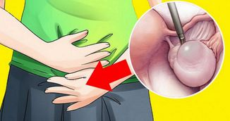 Simptomele subtile care iti spun ca ai chisturi ovariene. Fii foarte atenta la ele