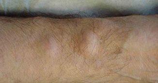 Tratament natural pentru lipom - Il poti face la tine acasa