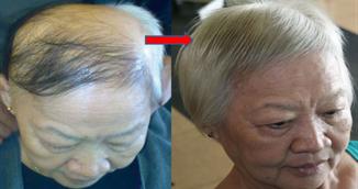 Si-a masat scalpul cu cateva picaturi din acest sirop si i-a crescut inapoi tot parul cazut! Uite cum se prepara tinctura miraculoasa!
