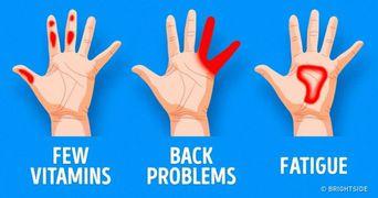 Sapte lucruri importante pe care mainile tale incearca sa ti le spuna despre starea ta de sanatate. Fii atenta la ele