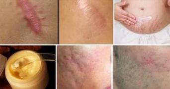 Scapa de cicatrici si vergeturi cu ajutorul unui remediu naturist. Semnele dispar in mai putin de o luna