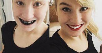 Si-a periat dintii cu substanta asta neagra si a obtinut un alb incredibil! Uite ce sa faci si tu ca sa obtii acelasi efect!