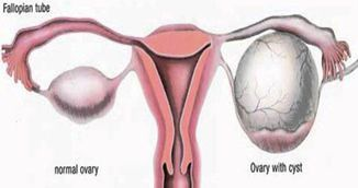 Ai chisturi ovariene? Uite cum le micsorezi cu aceste trucuri naturale