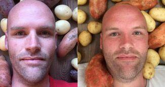 Barbatul asta a mancat doar cartofi timp de un an! Uite ce i s-a intamplat!