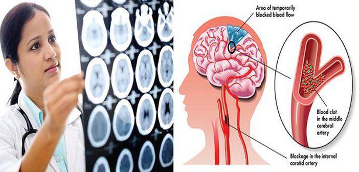 Acestea sunt cele mai periculoase dureri de cap. Mergi urgent la medic