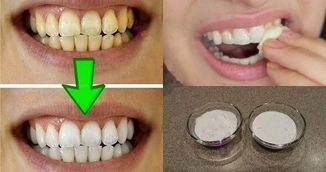 Genial! Aceasta metoda simpla iti albeste dintii in mai putin de doua minute!