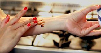 Si-a aplicat sos de soia pe mana! Ce i s-a intamplat cateva secunde mai tarziu!