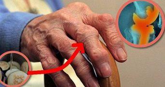 A scapat de durerea de genunchi si articulatii intr-o singura zi, folosind o reteta uimitoare!
