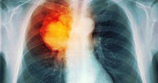 Descoperire uluitoare: oamenii de stiinta din Amsterdam au distrus cancerul la san in 11 zile, fara chimioterapie!