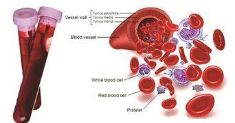 Esti anemica? Bautura asta iti creste numarul celulelor rosii din sange