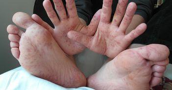 Boala mana-gura-picior: Astea sunt simptomele care trebuie sa te trimita urgent la medic