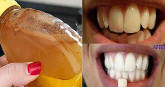 Fa gargara cu acest ingredient simplu si vezi ce lucru uimitor se intampla cu dintii tai!