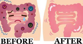 Bomba miraculoasa de sanatate care elimina toate toxinele din colon!