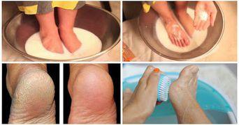 Nu mai arunca banii pe pedichiura! Aceste doua ingrediente iti transforma picioarele!