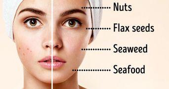 Alimentele care amelioreaza acneea. Scapa de problema mancand sanatos