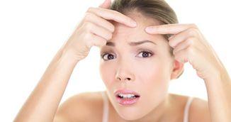 Mancarea poate provoca acnee? Ce spun specialistii