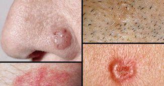 Cele zece semne care iti spun ca ai celule canceroase in organism! Fii foarte atenta la ele!
