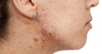 Factorii care provoaca acneea la adulti