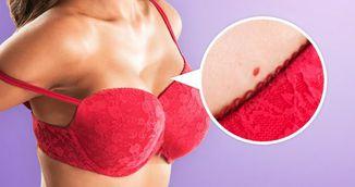 Ce reprezinta aceste pete rosii de pe piele? Nimeni nu ti-a spus asta pana acum