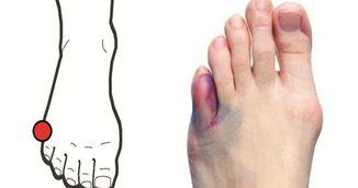 Adevarul despre durerea uriasa pe care o simti cand te lovesti la cot sau la degetul mic de la picior!