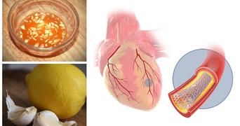 Combinatia geniala care reduce nivelul de colesterol din sange, stimuleaza circulatia si poate desfunda arterele infundate