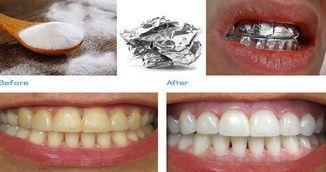 Si-a pus folie de aluminiu pe dinti si a asteptat o ora! Uite ce lucru uimitor i s-a intamplat!