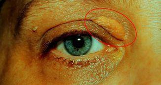 Cum sa scapi de depozitele de grasime din jurul ochilor in mod natural