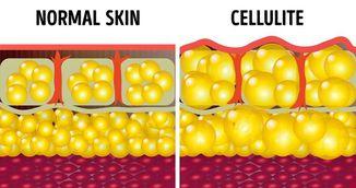 Cel mai eficient truc anti-celulita. Face miracole pentru pielea ta