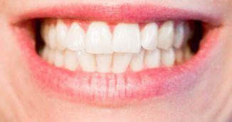 Dieta pentru albirea dintilor - Ce sa mananci ca sa ai dinti mult mai albi