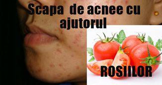 Rosiile, solutia rapida pentru a scapa de acnee. Ce trebuie sa faci