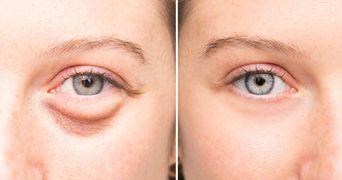 Cum scapi rapid de pungile de sub ochi cu un remediu natural
