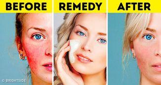 Cum sa-ti faci o masca de casa care vindeca acneea. Simplu si rapid